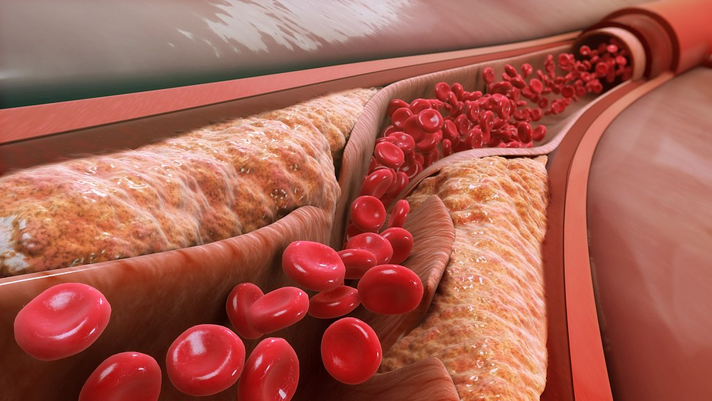 Image: Small particle LDL has been associated with the progression of atherosclerosis and blockage the artery lumen, because it can carry cholesterol into smaller vessels. As atheroma enlarges, the arterial wall ruptures and releases blood clots that lead to narrowing of the artery (Photo courtesy of Wikimedia Commons)