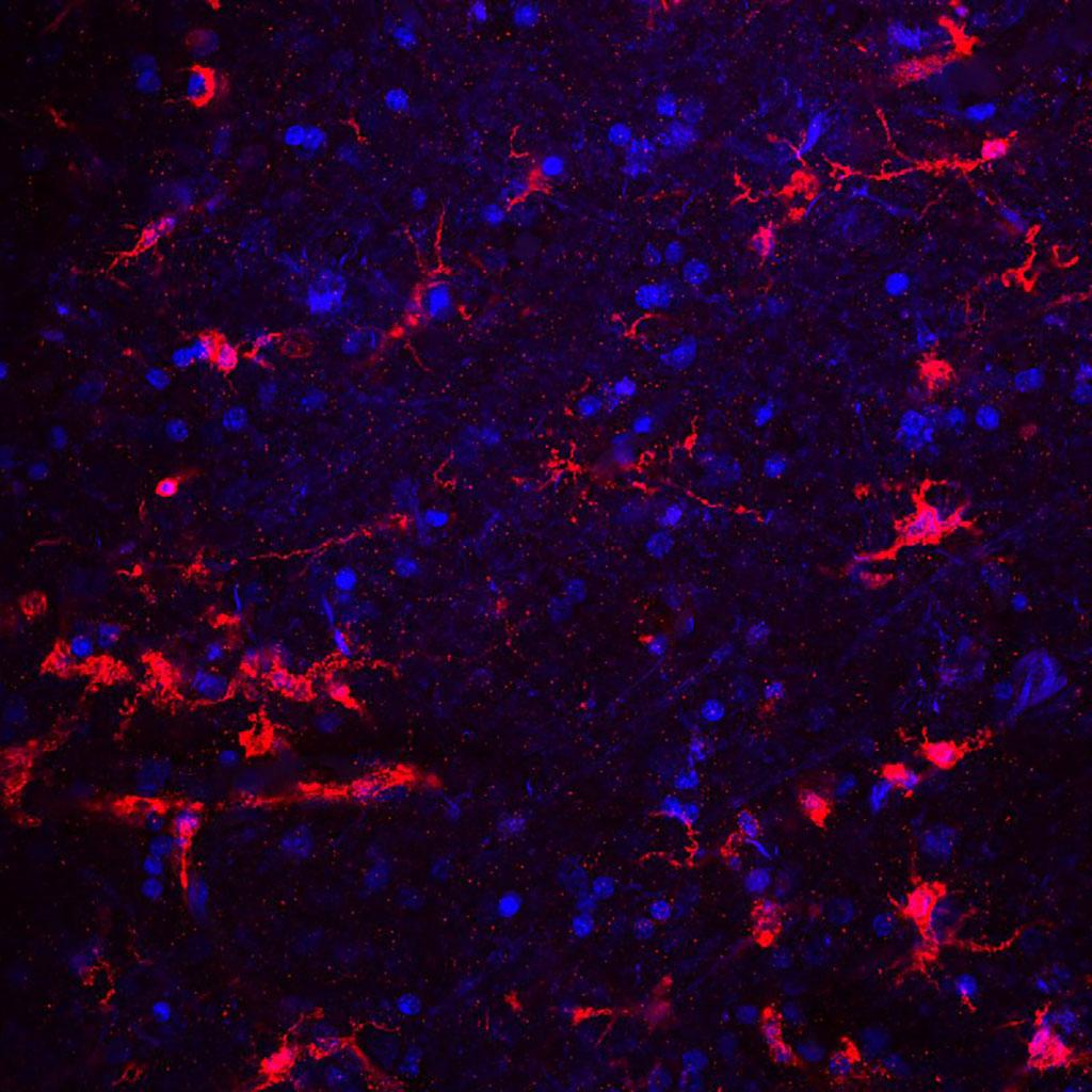 Image: Immunofluorescence image of microglial cells stained red with antibody. DNA shown in blue (Photo courtesy of Wikimedia Commons)