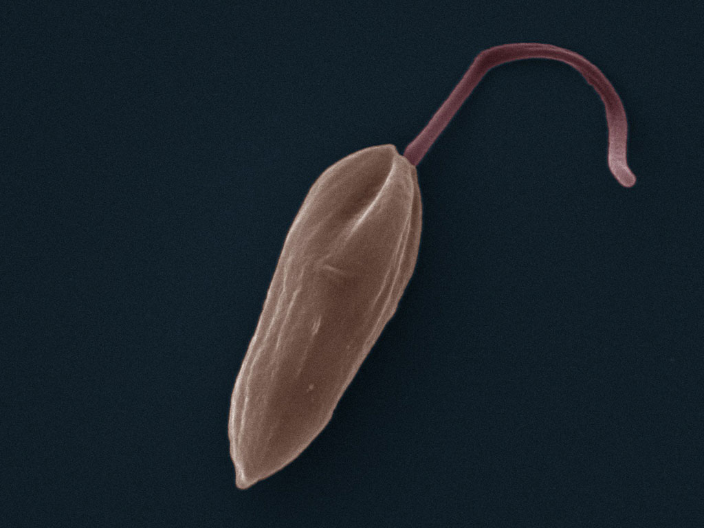 Image:  False color SEM (scanning electron microscope) micrograph of a Leishmania promastigote. The cell body is shown in orange and the flagellum is in red (Photo courtesy of Wikimedia Commons)