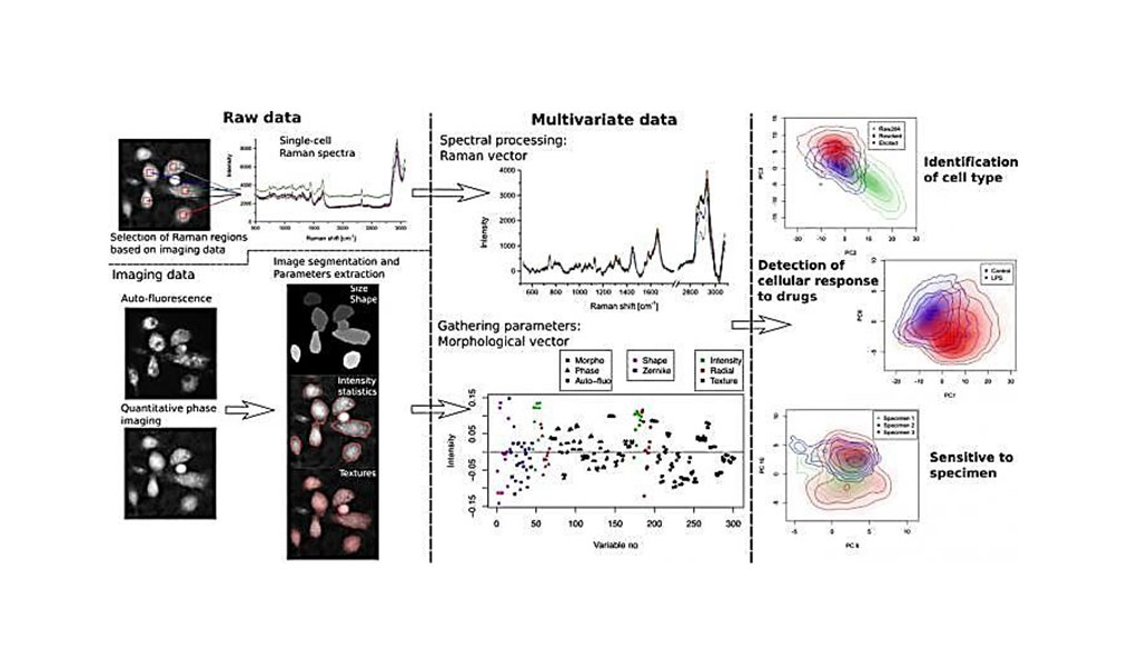Image: Methods of extracting features from label-free immune cell analysis. Multivariate label-free data, composed of both morphological and spectral parameters, are used to identify high-level features at the single-cell level such as cellular type, response to drugs, as well as response differences between specimens (Photo courtesy of Osaka University)
