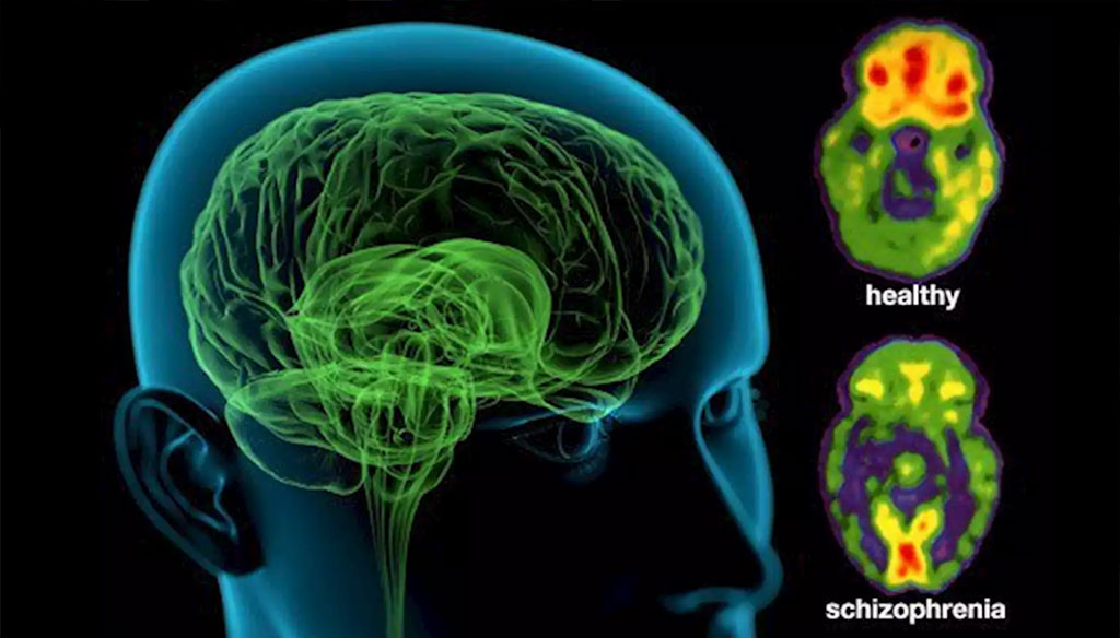 Image: Colored positron emission tomography (PET) scans of axial sections through a healthy brain (upper) and a schizophrenic brain (lower). Genetic architectures of schizophrenia in East Asian and European populations have been compared (Photo courtesy of WebMD)
