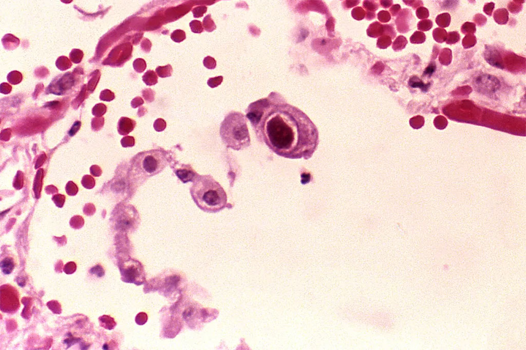 Image: Photomicrograph of a lung tissue specimen from a patient with an active cytomegalovirus infection. Histopathology revealed the presence of a cytomegalic pneumocyte, which contained the characteristic intranuclear, owl eye inclusion (Photo courtesy of [U.S.] Centers for Disease Control and Prevention)