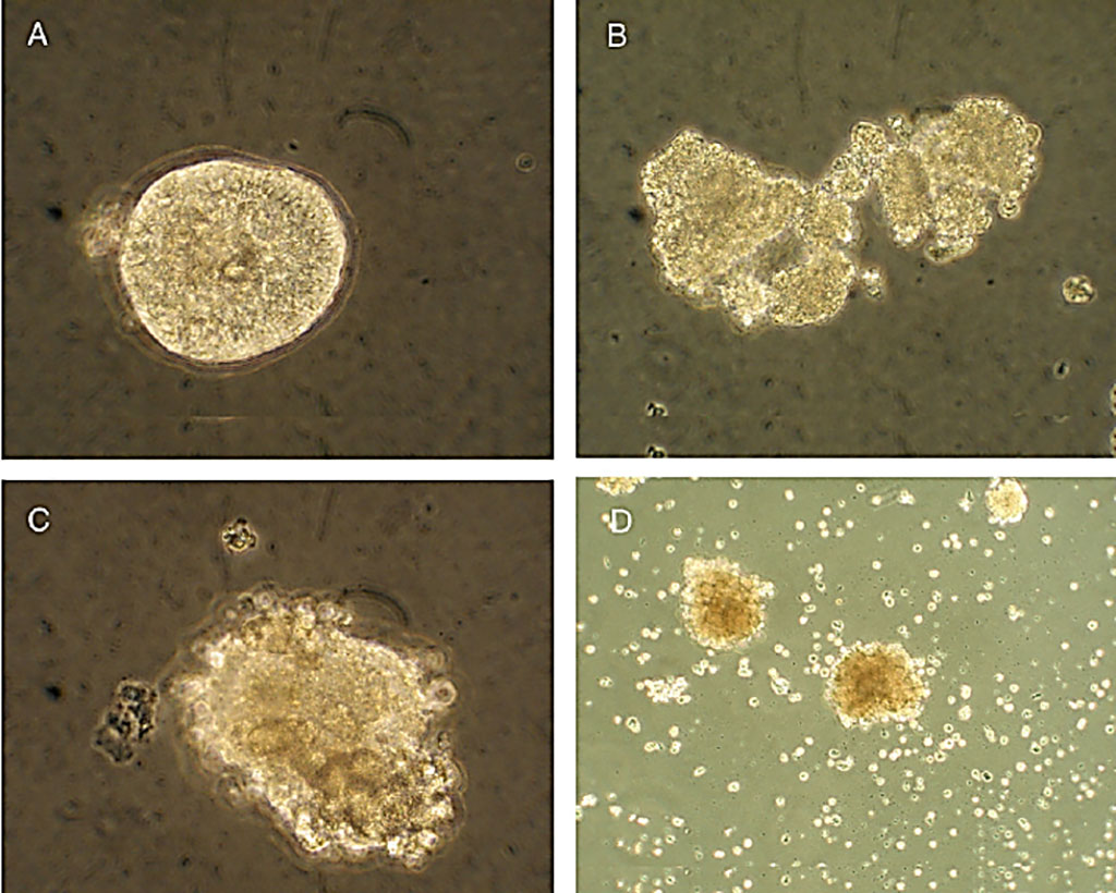Image: Degree of islet degradation in human pancreatic islets infected with isolates of enteroviruses, and in uninfected controls. (A) Uninfected human islet displayed no degradation of the islets. (B) Islets infected with an Enterovirus isolate three days post infection. (C) Islets infected with a different isolate three days post infection. (D) Islets infected with the same isolate six days post infection (Photo courtesy of Gun Frisk, PhD).
