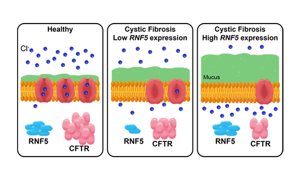 Image: In healthy people, the CFTR protein is embedded in the membrane of most cells, where it forms a channel for chlorine ions. In people with cystic fibrosis, an inherited mutation in the CFTR gene means their channels do not work as well and cells produce more mucus. The RNF5 protein inhibits CFTR, so people with cystic fibrosis who have genetic variations that decrease RNF5 expression have CFTR channels that function a little better, and thus are not as prone to infections as people with high RNF5 expression (Photo courtesy of University of California, San Diego)
