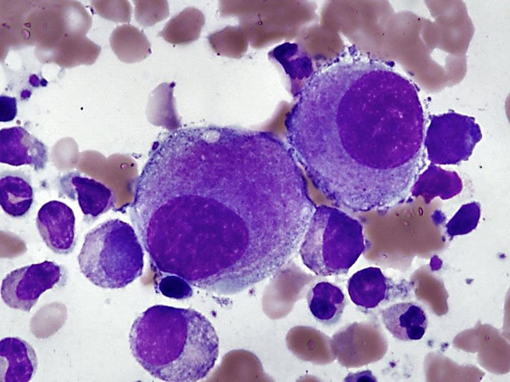 Image: Bone marrow film from a patient with myelodysplastic syndrome demonstrates small hypolobated megakaryocytes that are typical of the syndrome with isolated del(5q) (Photo courtesy of John P. Hunt, MD)