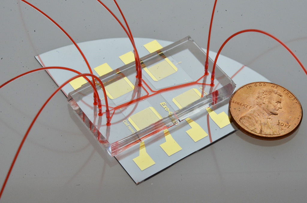Image: Acoustofluidic exosome isolation chip for salivary exosome isolation. The microfluidic channel is shown by red dye solution and the coin demonstrates the size of the chip. Two pairs of gold interdigital transducers are deposited along the channel, which separates particles according to size (Photo courtesy of The Journal of Molecular Diagnostics)