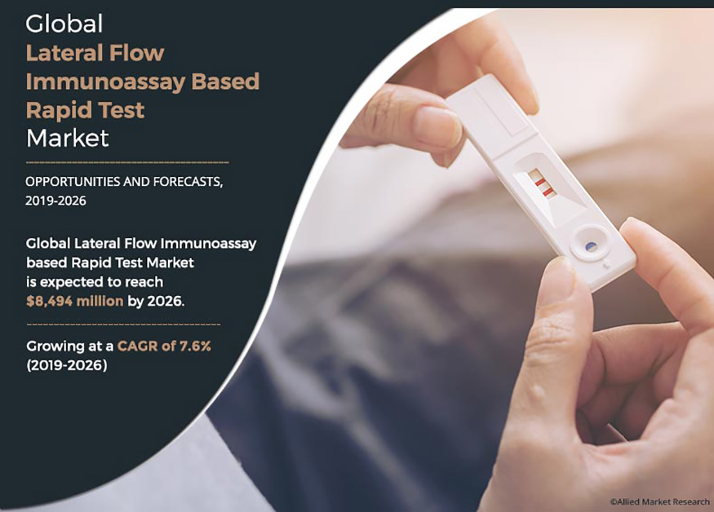 Image: Global Lateral Flow Immunoassay based Rapid Test Market is expected to reach $8,494 million by 2026 (Photo courtesy of Allied Market Research)