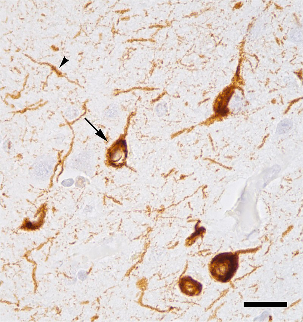 Image: Abnormal accumulation of tau protein in neuronal cell bodies (arrow) and neuronal extensions (arrowhead) in the neocortex of a patient who had died with Alzheimer\'s disease. Tau protein was stained brown using immunohistochemistry. The bar represents a distance of 25 microns (0.025 millimeters). (Photo courtesy of Wikimedia Commons)
