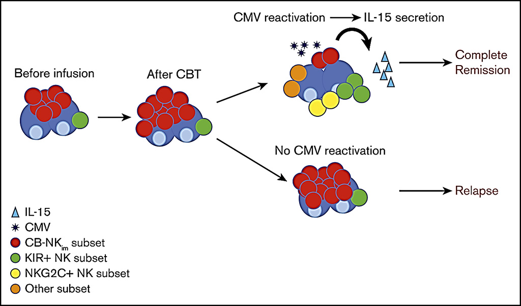 Image: Schematic diagram of how novel immature natural killer cell subpopulation predicts relapse after cord blood transplantation (CBT) (Photo courtesy of MD Anderson Cancer Center).