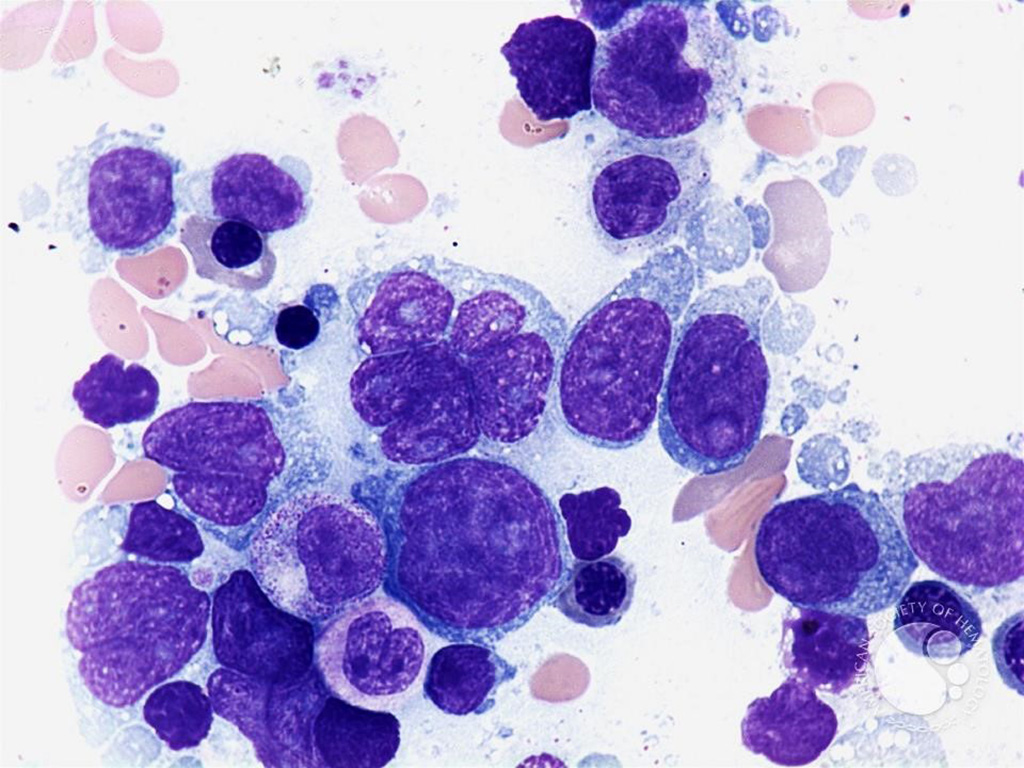 Image: Micrograph of a diffuse large B cell lymphoma, from a bone marrow aspirate; the nucleus may be convoluted and irregular (Photo courtesy of Peter Maslak)