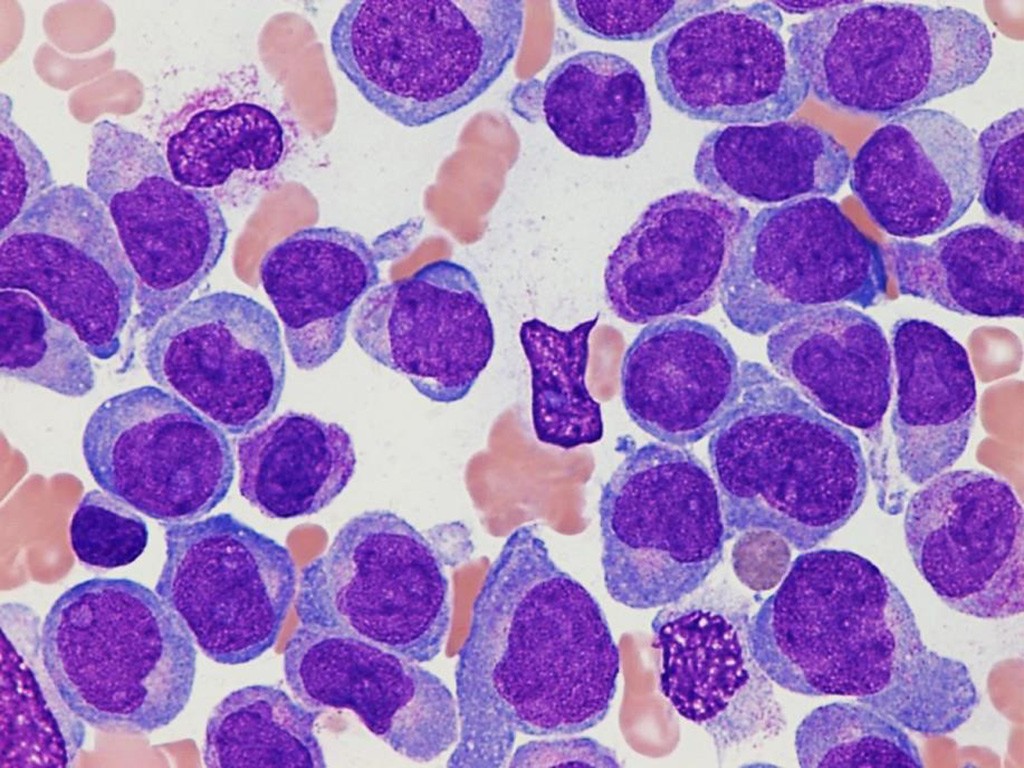 Image: Photomicrograph of bone marrow aspirate of a pediatric patient with acute myeloid leukemia (Photo courtesy of St. Jude Children's Research Hospital).