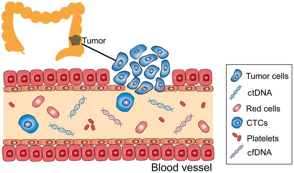 Image: Schematic diagram of, circulating tumor DNA (ctDNA); circulating tumor cell (CTC); cell-free DNA (cfDNA) in the peripheral blood stream of a colon cancer patient (Photo courtesy of Oncology Letters)