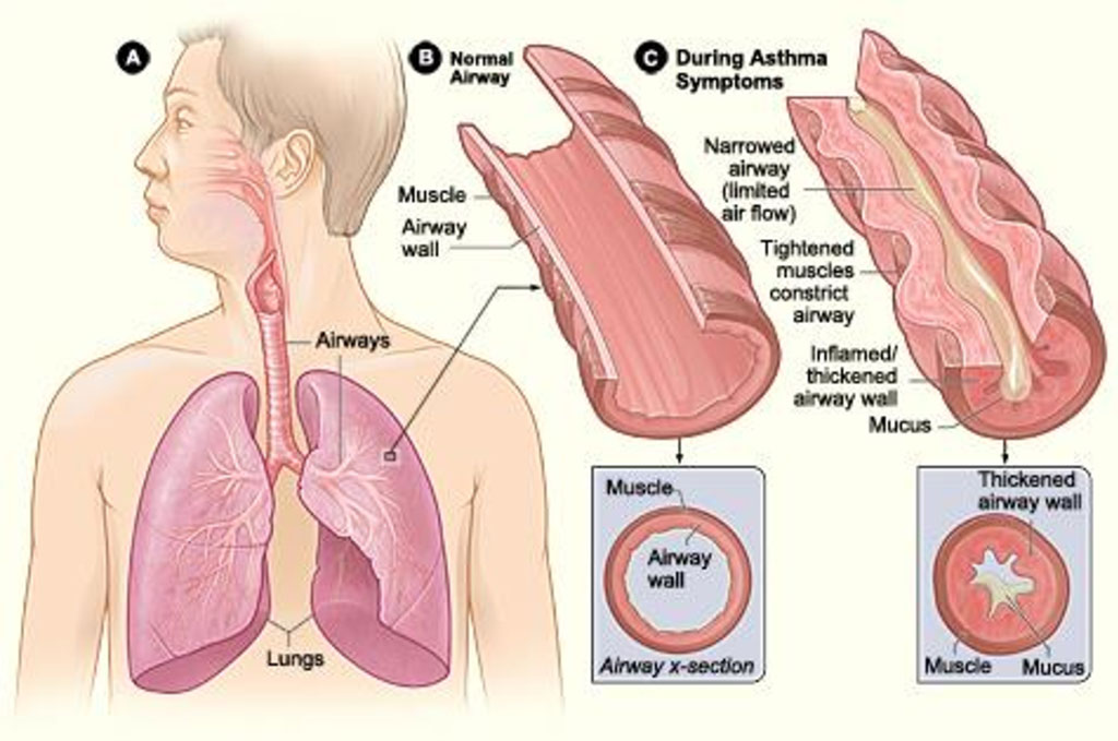 Image: Figure A shows the location of the lungs and airways in the body. Figure B shows a cross-section of a normal airway. Figure C shows a cross-section of an airway during asthma symptoms (Photo courtesy of [U.S.] National Institute of Health: National Heart, Lung, Blood Institute)