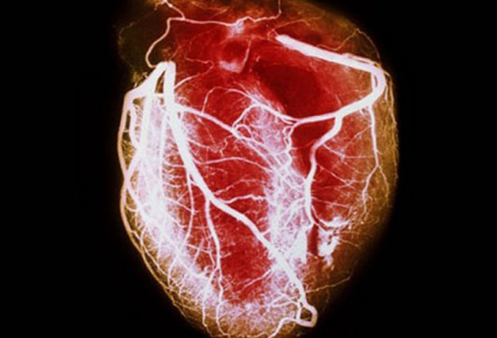 Image: Genome-wide association and Mendelian randomization analysis provide insights into the pathogenesis of heart failure (Photo courtesy of WebMD).