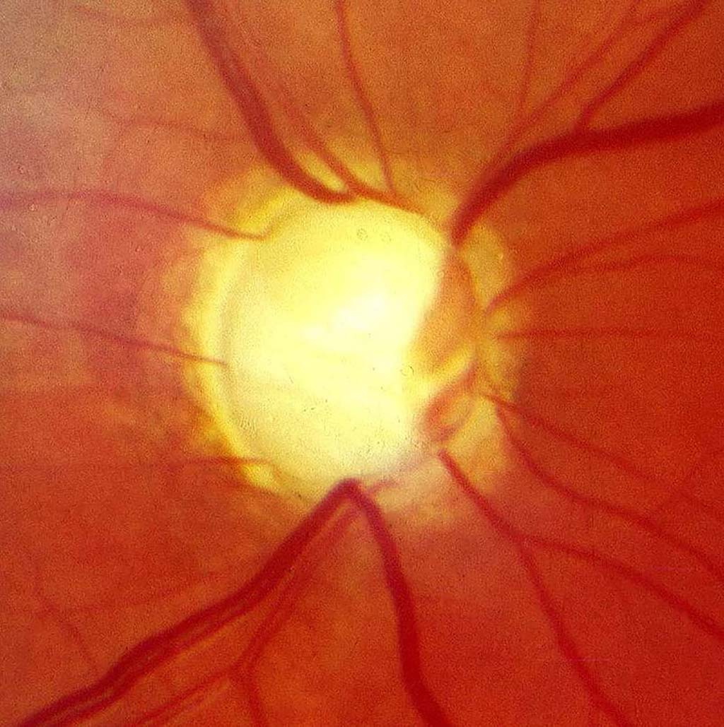 Image: Optic nerve in advanced glaucoma disease (Photo courtesy of Wikimedia Commons)