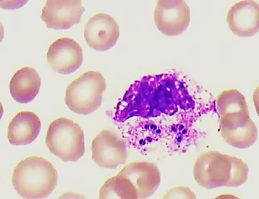 Image: Blood smear of patient with intracellular cocci in pairs inside a white blood cell, possibly indicating sepsis. Oncostatin-M is a biomarker for sepsis risk (Photo courtesy of Dr. Wim van der Meer).