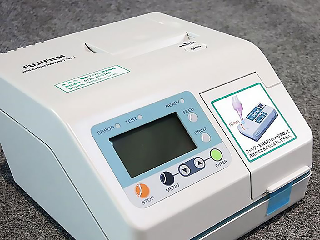 Image: The FUJI DRI-CHEM IMMUNO AG1 analyzer (Photo courtesy of FUJI FILM).