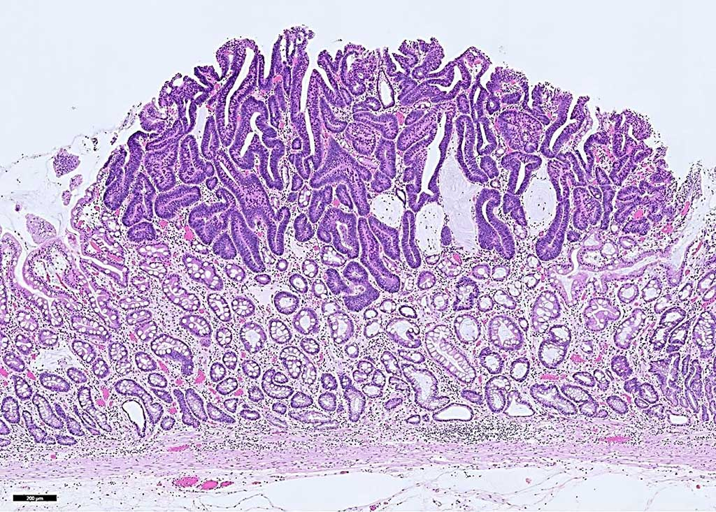 Image: Histopathology of early gastric cancer, an intramucosal adenocarcinoma. A blood test used in a targeted methylation (TM) sequencing assay may help detect hard-to-detect gastrointestinal cancers in asymptomatic individuals (Photo courtesy of Andrey Bychkov, MD, PhD).