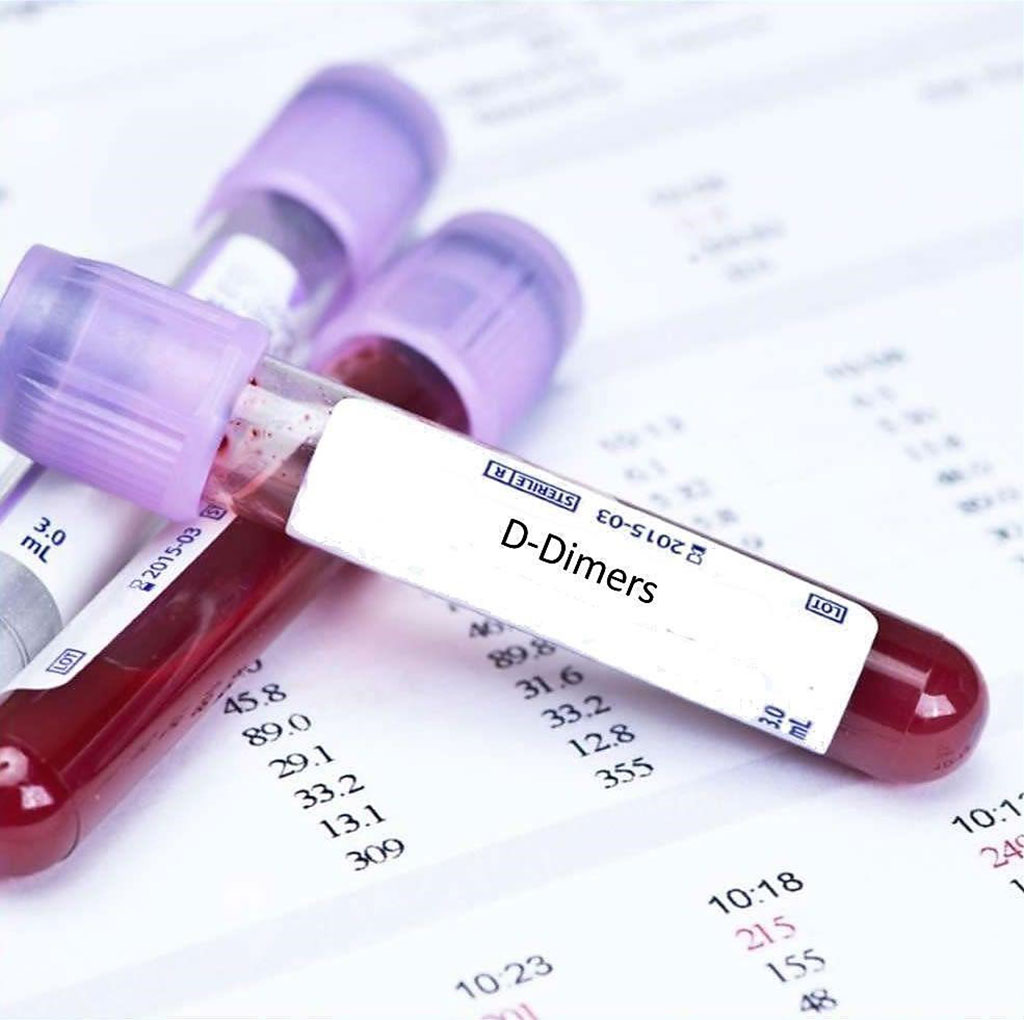 Image: Blood test for D-dimer showed high sensitivity and specificity in the prediction of ischemic stroke in patients with infective endocarditis (Photo courtesy of Blue Horizon).