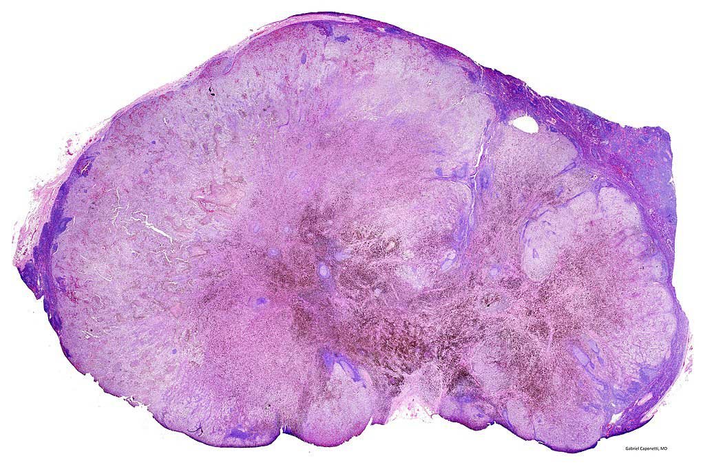 Image: Photomicrograph of a lymph node with almost complete replacement by metastatic melanoma (Photo courtesy of Wikimedia Commons)
