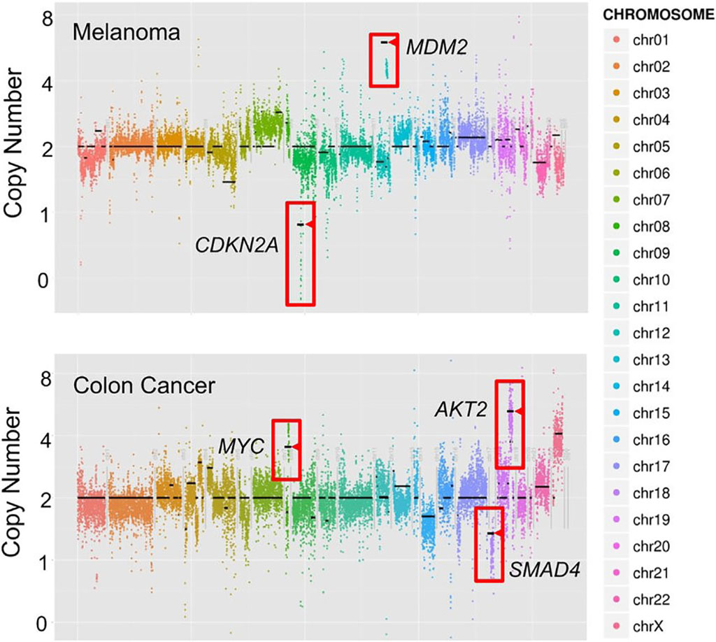 Image: Copy number variants (CNVs) detection directly by UW-OncoPlex sequencing; depicted are examples from a melanoma and colon cancer sample (Photo courtesy of Noah G. Hoffman, MD, PhD).