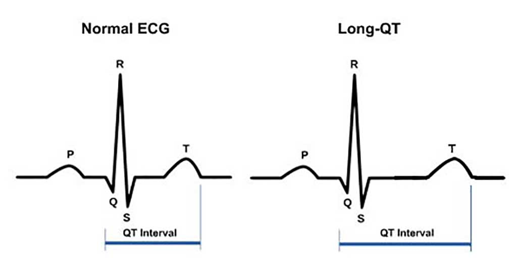 Image: Normal electrocardiogram (ECG) and an ECG showing QT interval prolongation (long QT syndrome). The P wave represents atrial depolarization; the QRS complex, ventricular depolarization; and the T wave, ventricular repolarization. The QT interval is measured from the beginning of the QRS complex to the return of the T wave to the isoelectric line (Photo courtesy of Mayo Clinic).