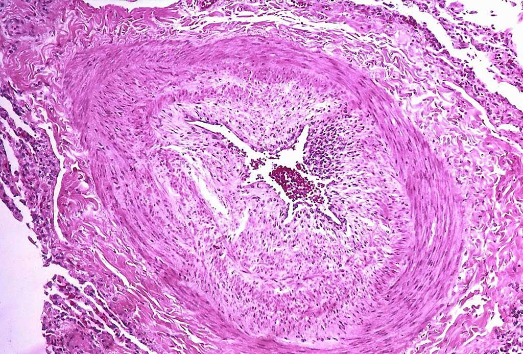 Image: Histopathology showing arteries of a patient with pulmonary arterial hypertension (PAH) with marked thickening of the walls. A unique profile of gut bacteria can predict the presence of pulmonary artery hypertension in patients with 83% accuracy (Photo courtesy of Yale Rosen, MD).