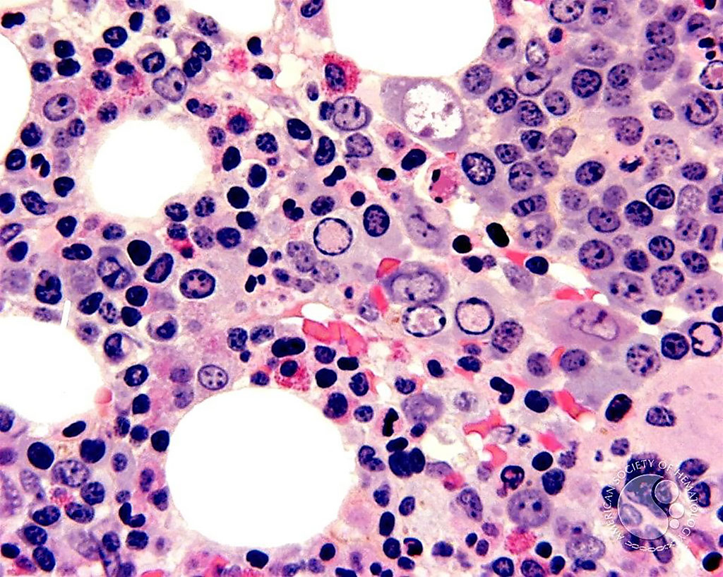 Image: Histological micrograph of a bone marrow biopsy from a patient with parvovirus. The parvovirus nuclear inclusions (clear areas) in the erythroblasts are more evident (Photo courtesy of John Lazarchick, MD).