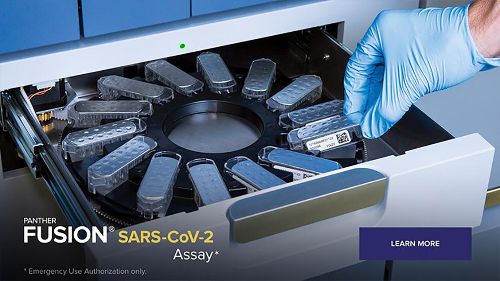 Image: Panther Fusion SARS-CoV-2 (Photo courtesy of Hologic, Inc.)
