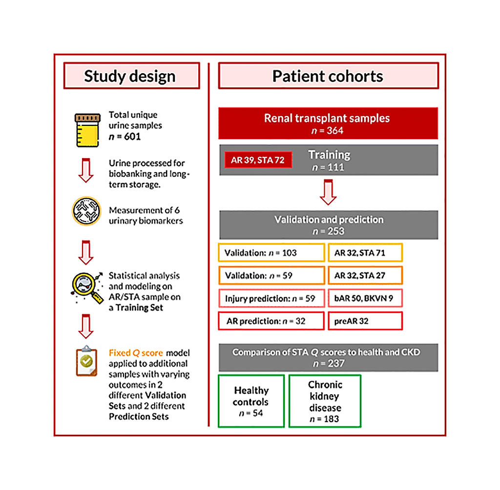 Image: Schematic diagram of a urine score for noninvasive accurate diagnosis and prediction of kidney transplant rejection study (Photo courtesy of the University of California, San Francisco).