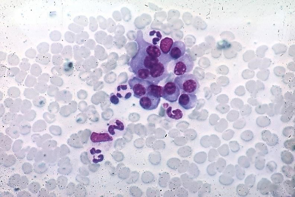 Image: Photomicrograph of normal plasma cells from a bone marrow aspirate (Photo courtesy of Peter Anderson).