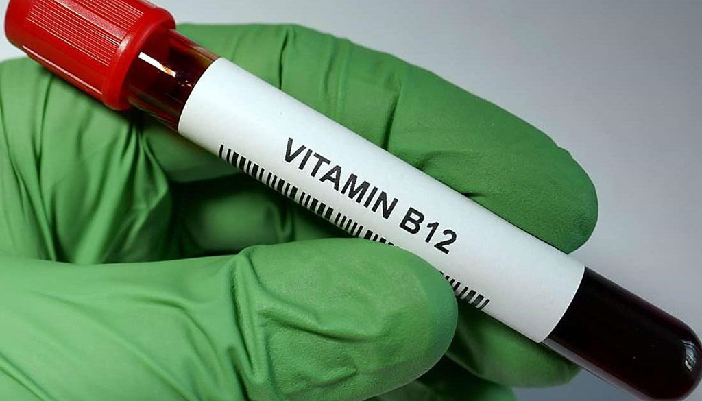 Image: Higher vitamin B12 level at Parkinson`s disease diagnosis is associated with lower risk of future dementia (Photo courtesy of Jayne Leonard)