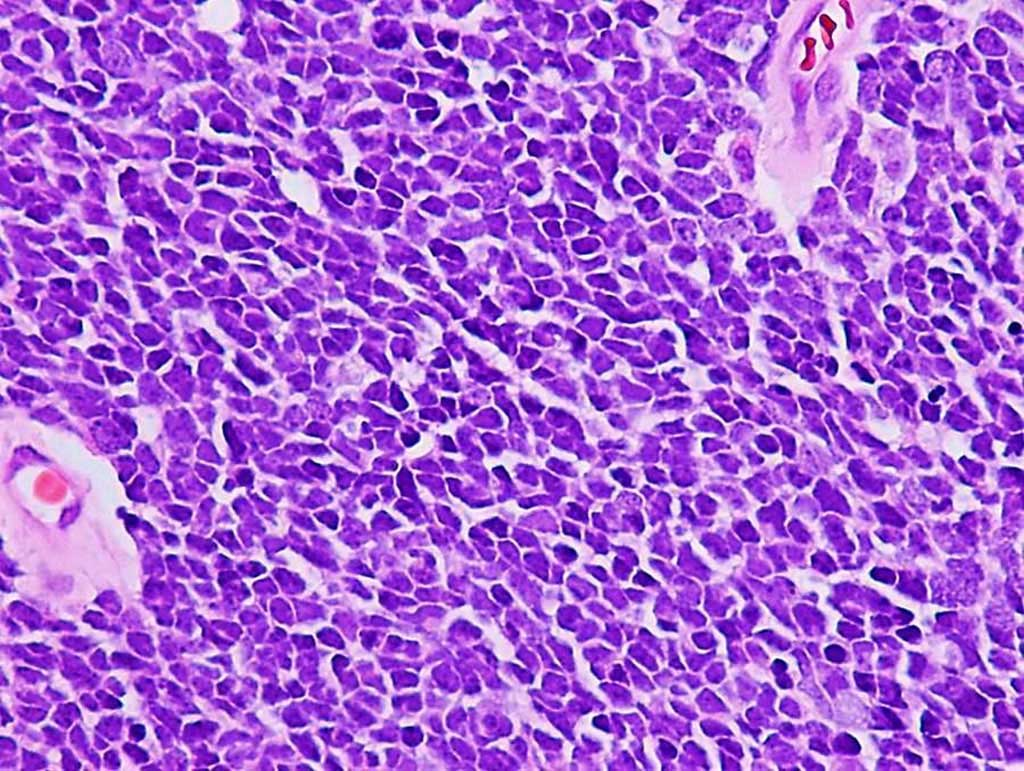 Image: Histopathology of classic medulloblastoma in the brain showing a diffuse pattern of tumor growth with poor cellular differentiation, nuclear molding, and minimal indistinct cytoplasm (Photo courtesy of Adekunle M. Adesina, MD, PhD)