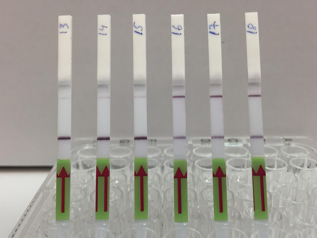 Image: The lateral flow strips show three patient samples that are negative for BK virus (13,14,15) and three patient samples that are positive (16,17,18). Presence of the upper band indicates a positive test result (Photo courtesy of Dr. Michael Kaminski, Max Delbrück Center for Molecular Medicine)