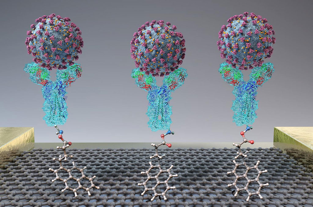 Image: A new test quickly detects SARS-CoV-2 (spheres) through binding to antibodies (Y-shapes) on a field-effect transistor (Photo courtesy of adapted from ACS Nano 2020, DOI: 10.1021/acsnano.0c02823).