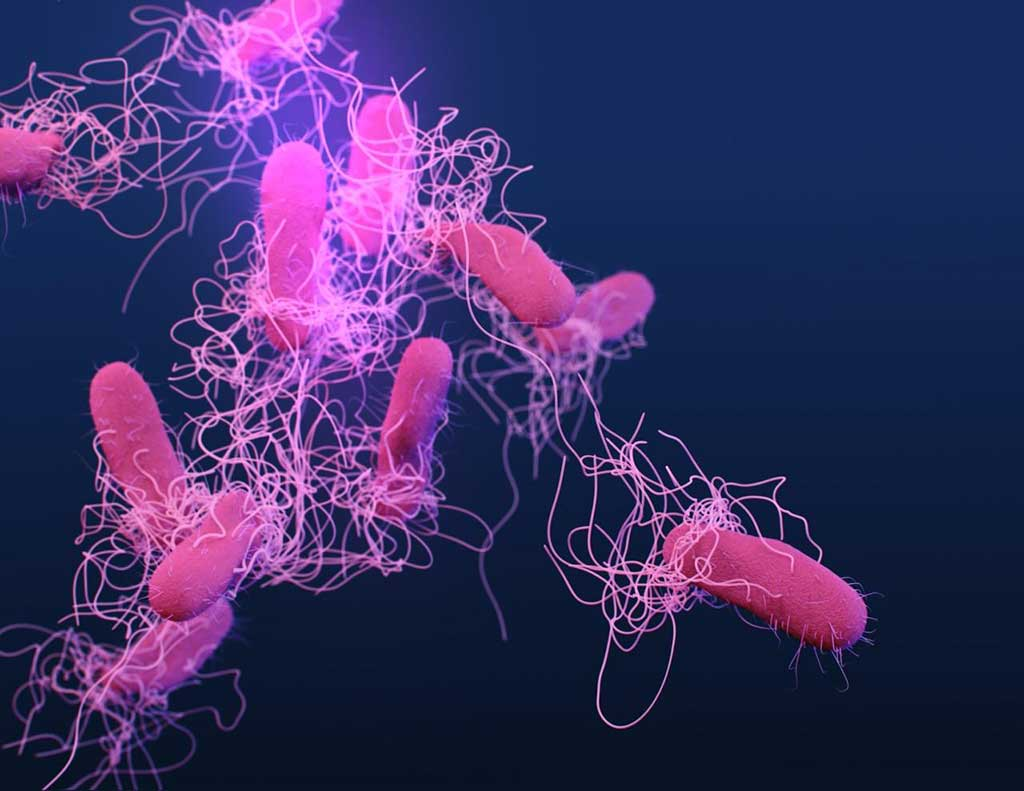Image: Salmonella are gram-negative, rod-shaped, facultative anaerobic bacteria. Newly developed sensitive and specific assays are able to detect different serotypes of Salmonella, paving the way for rapid serotyping directly from specimens (Photo courtesy of Public Health Image Library, [U.S.] Centers for Disease Control and Prevention)
