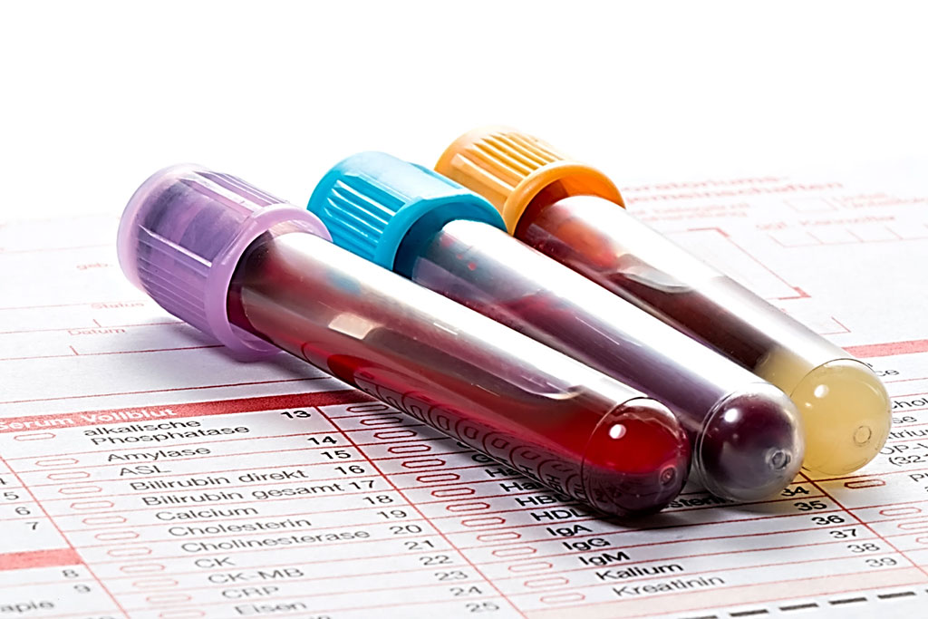 Image: Multicancer Blood Test Aids Screen for Cancer Guide Intervention (Photo courtesy of fotoquique/Depositphotos).