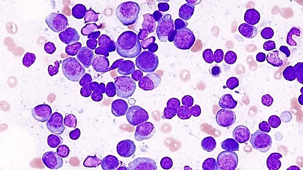 Image: Photomicrograph of multiple myeloma in a smear preparation of a bone marrow aspirate (Photo courtesy of the Institute of Cancer).