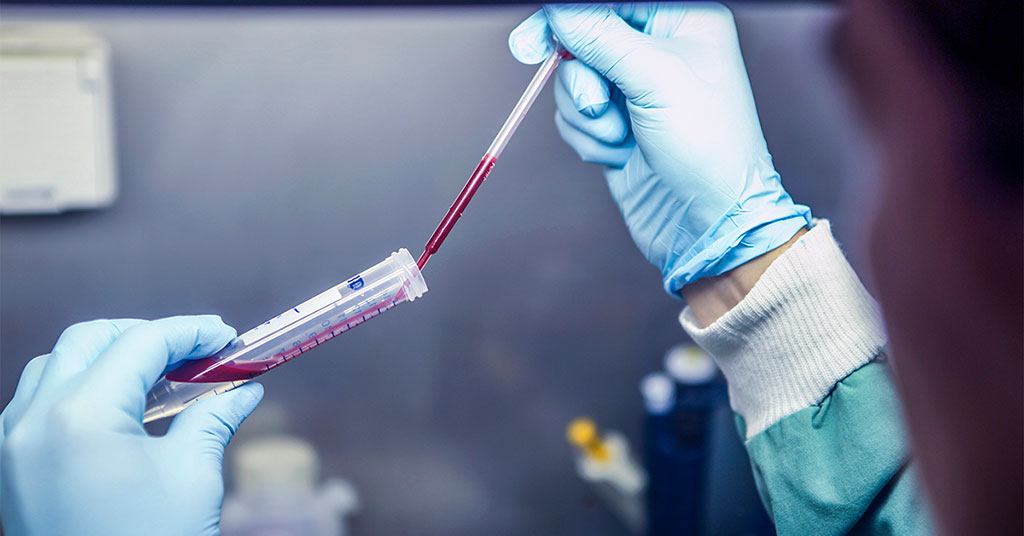 Image: A new blood test has been developed for detecting recent exposure to `relapsing` or vivax malaria (Photo courtesy of Mayeta Clark, Walter and Eliza Hall Institute, Australia)