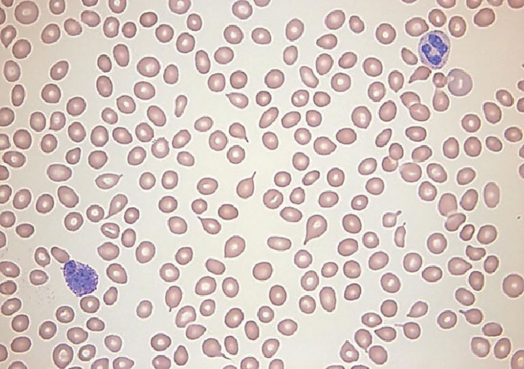 Image: A blood smear from a patient with microcytosis which may predict underlying cancer even in the presence of normal hemoglobin. Microcytic red blood cells measure 6 μm or less in diameter.  The mean corpuscular volume is generally less than 80 fL (Photo courtesy of Sara Beth Fazio, MD).