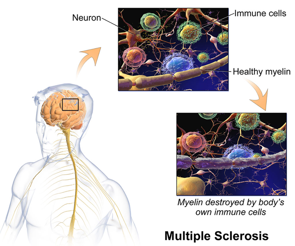 Image: Processes underlying multiple sclerosis (Photo courtesy of Wikimedia Commons)