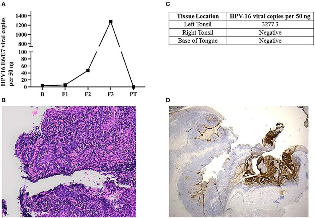 Image: Left panel: Histological sections of the left tonsillar tissue found a 2 mm non-keratinizing squamous cell carcinoma, with focal stromal invasion  comparing non-affected area in the left tonsil (Photo courtesy of Queensland University of Technology).