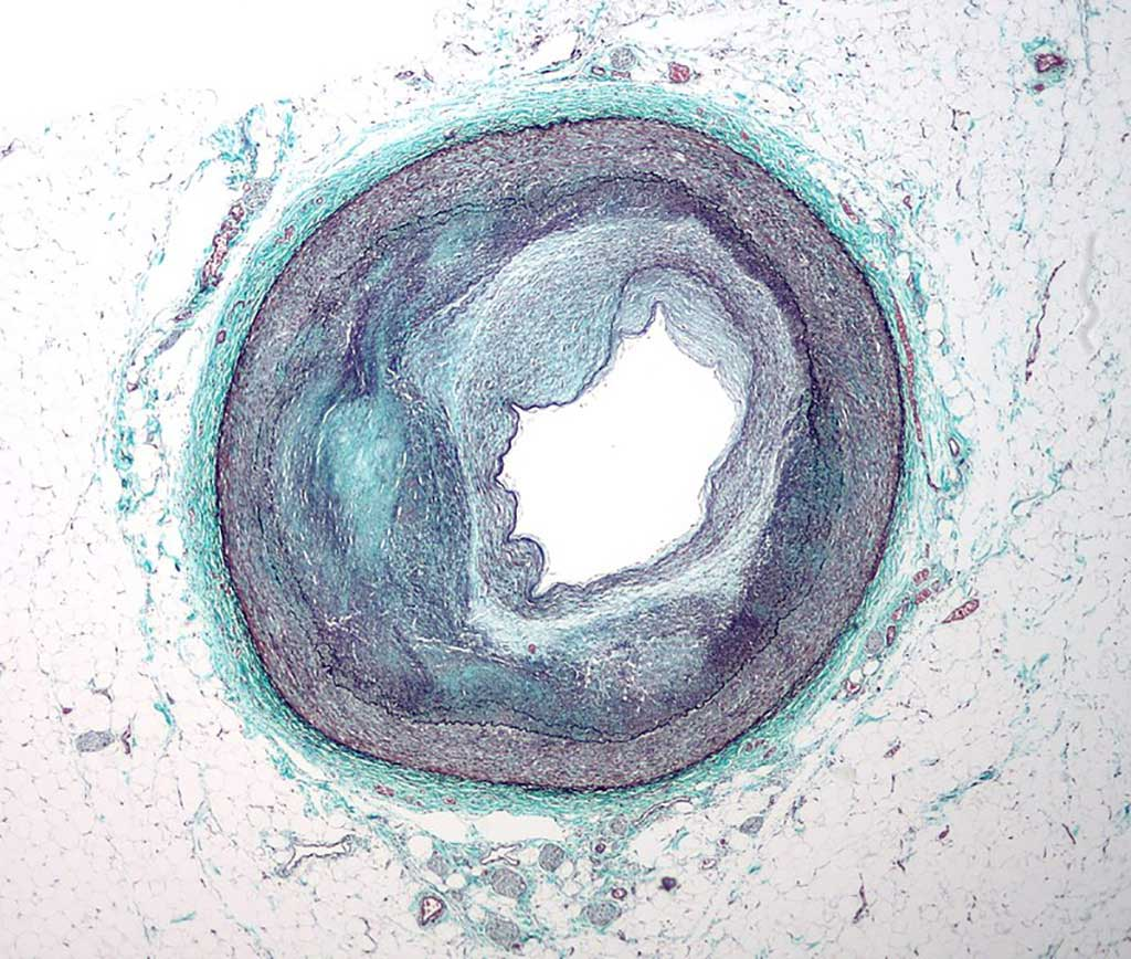 Image: Micrograph of a coronary artery with the most common form of coronary artery disease (atherosclerosis) and marked luminal narrowing (Photo courtesy of Wikimedia Commons)
