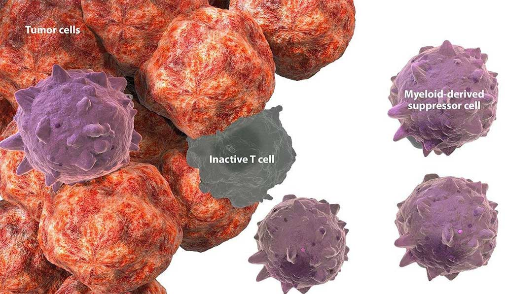 Image: Myeloid-derived suppressor cells in the tumor microenvironment have been observed in a variety of solid tumors (Photo courtesy of BMS Immuno-Oncology).
