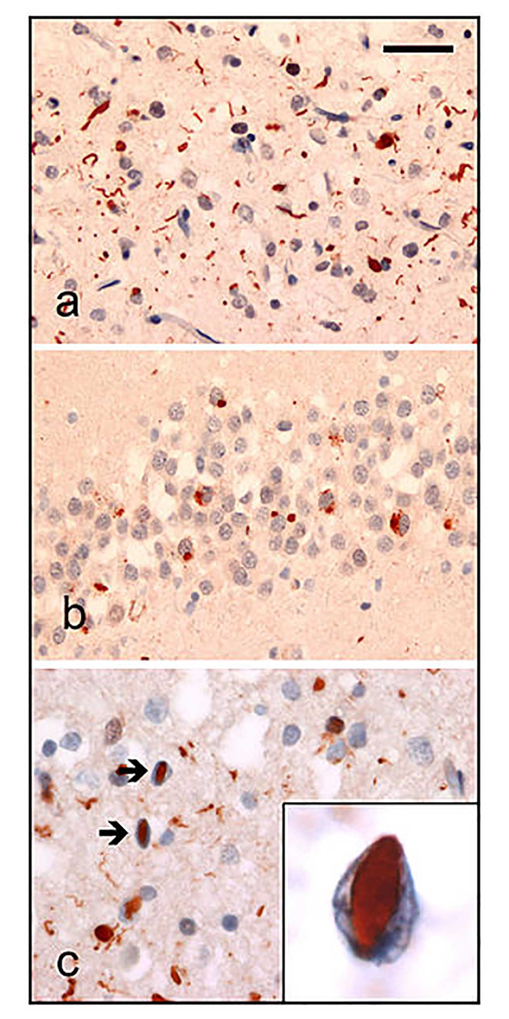 Image: Neuropathologic analysis of brain tissue from FTLD patients. Ubiquitin immunohistochemistry in cases of familial FTLD demonstrates staining of (a) neurites and neuronal cytoplasmic inclusions in the superficial cerebral neocortex, (b) neuronal cytoplasmic inclusions in hippocampal dentate granule cells, and (c) neuronal intranuclear inclusions in the cerebral neocortex (arrows). (Photo courtesy of Wikimedia Commons)