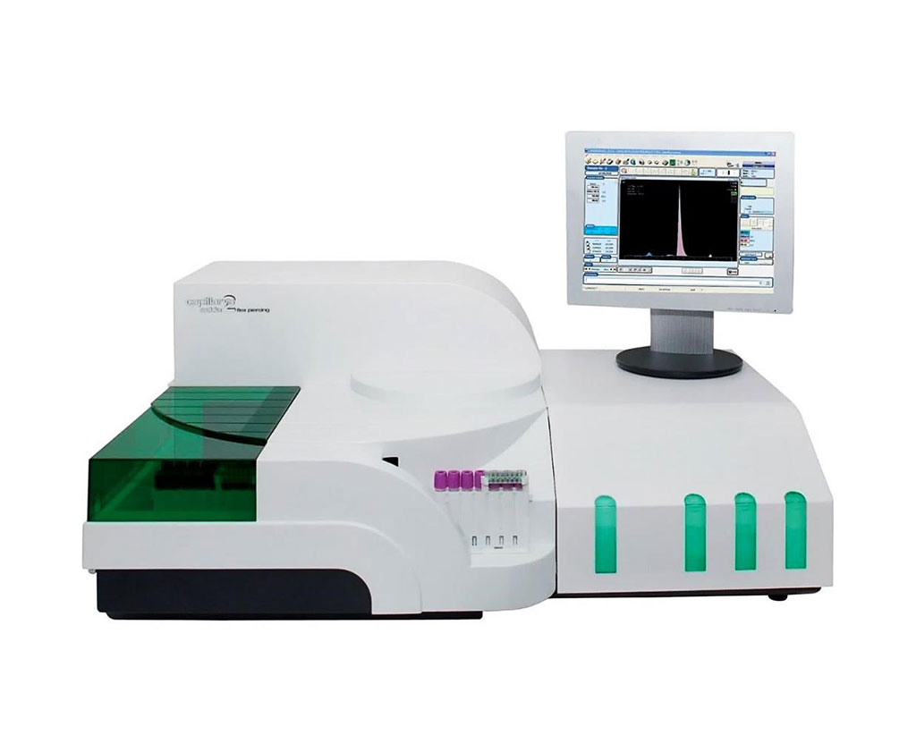 Image: CAPILLARYS 2 FLEX PIERCING is an instrument utilizing capillary electrophoresis developed to be versatile while providing a clear-cut and precise protein separation with high throughput (Photo courtesy of Sebia).
