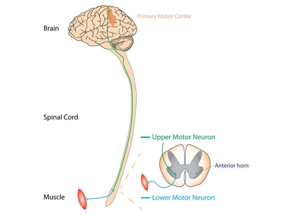 Image: Typical or `classical` ALS involves neurons in the brain (upper motor neurons) and in the spinal cord (lower motor neurons) (Photo courtesy of Wikimedia Commons)