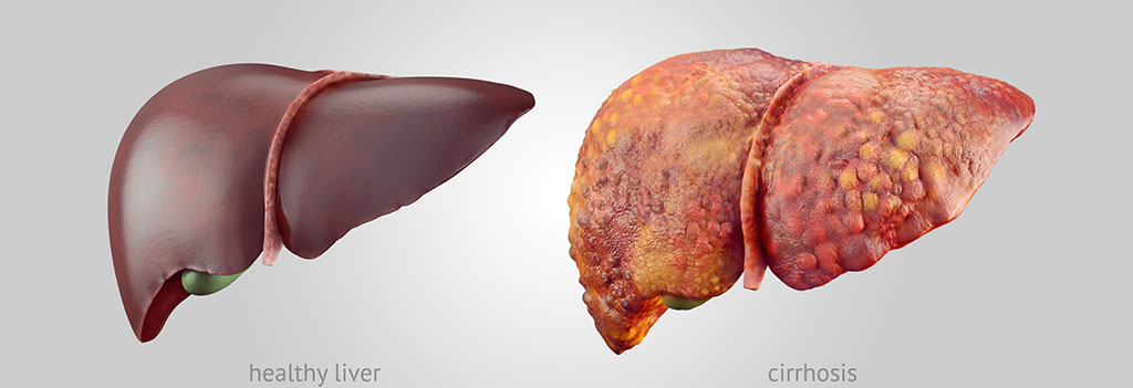 Image: Illustration depicts a healthy liver (left) and a liver with cirrhosis (Photo courtesy of [U.S.] National Institute of Diabetes and Digestive and Kidney Diseases)