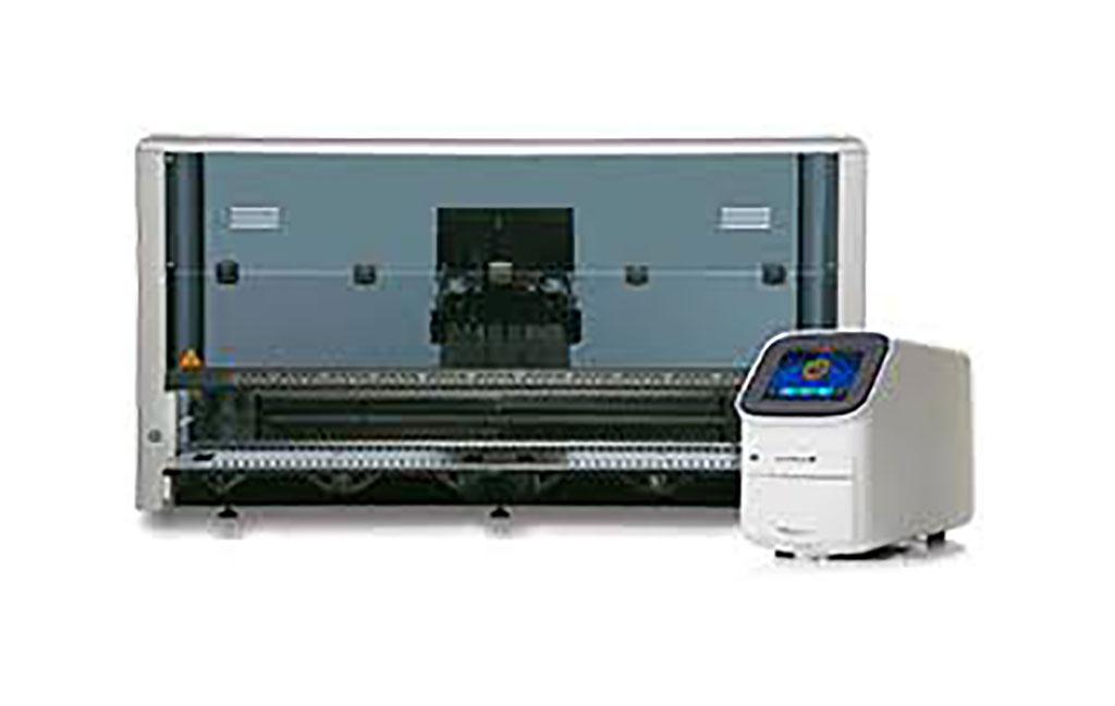 Image: AMPIPROBE® SARS-CoV-2 Test System on the GENFLEX™ platform (Photo courtesy of Enzo Biochem)