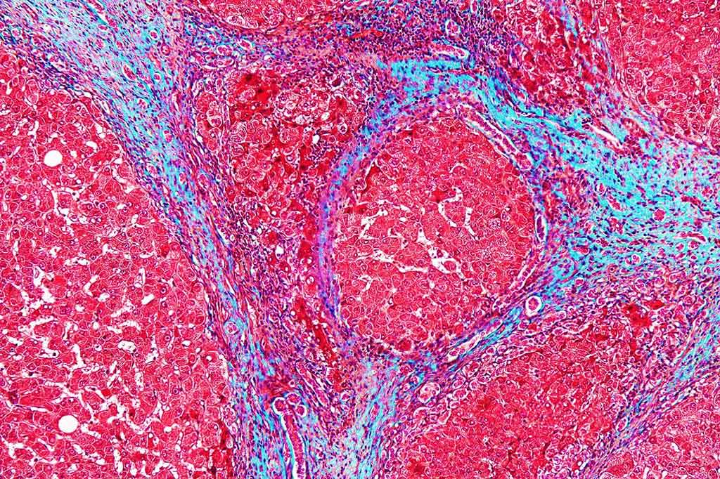 Image: High magnification photomicrograph of a liver with cirrhosis (Photo courtesy of Nephron).